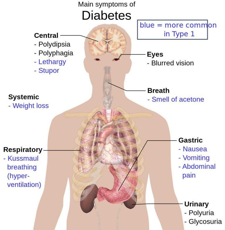 Diabetic-Kidney-Disease-Symptoms