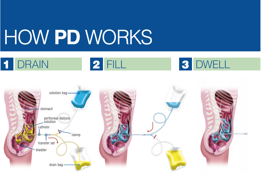 How PD works