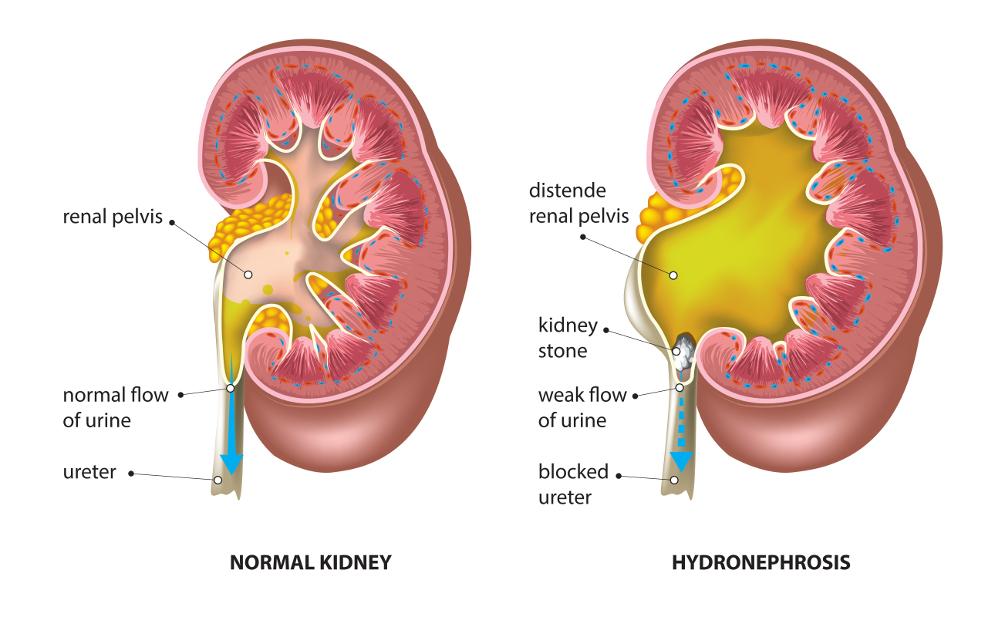 Hydronephrosis Sai Nephrology